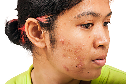 acne-how-long-take-antibiotic.jpg