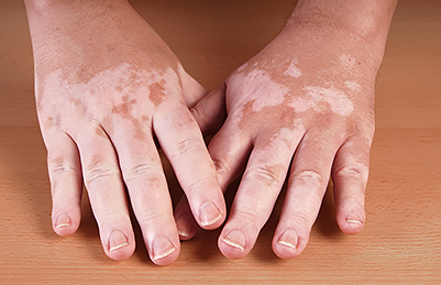 melanoma-skin-reactions-targeted-therapy-vitiligo.jpg