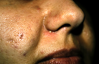 What can treat large facial pores? - Dermatologist in ...