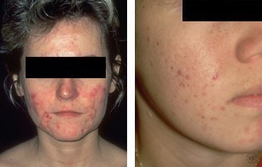 diseases-adult-acne.jpg