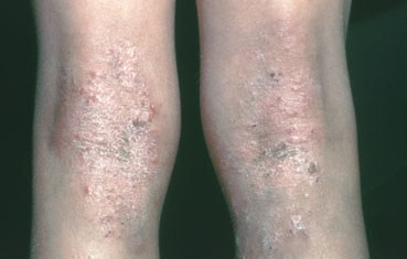 atopic_dermatitis_symptomos_knees.jpg
