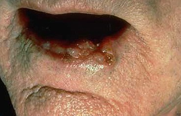 squamous-cell-carcinoma-lip.jpg
