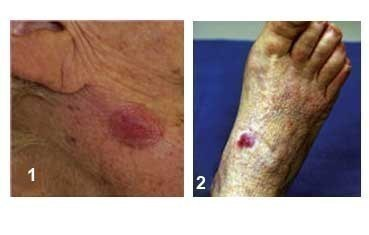 Merkel cell carcinoma - Dermatologist in Willowbrook & South