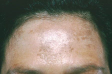 Skin Cancer In People Of Color Dermatologist In Willowbrook South Barrington Il
