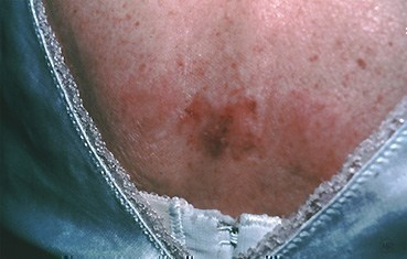 superficial-basal-cell-carcinoma-slide4.jpg